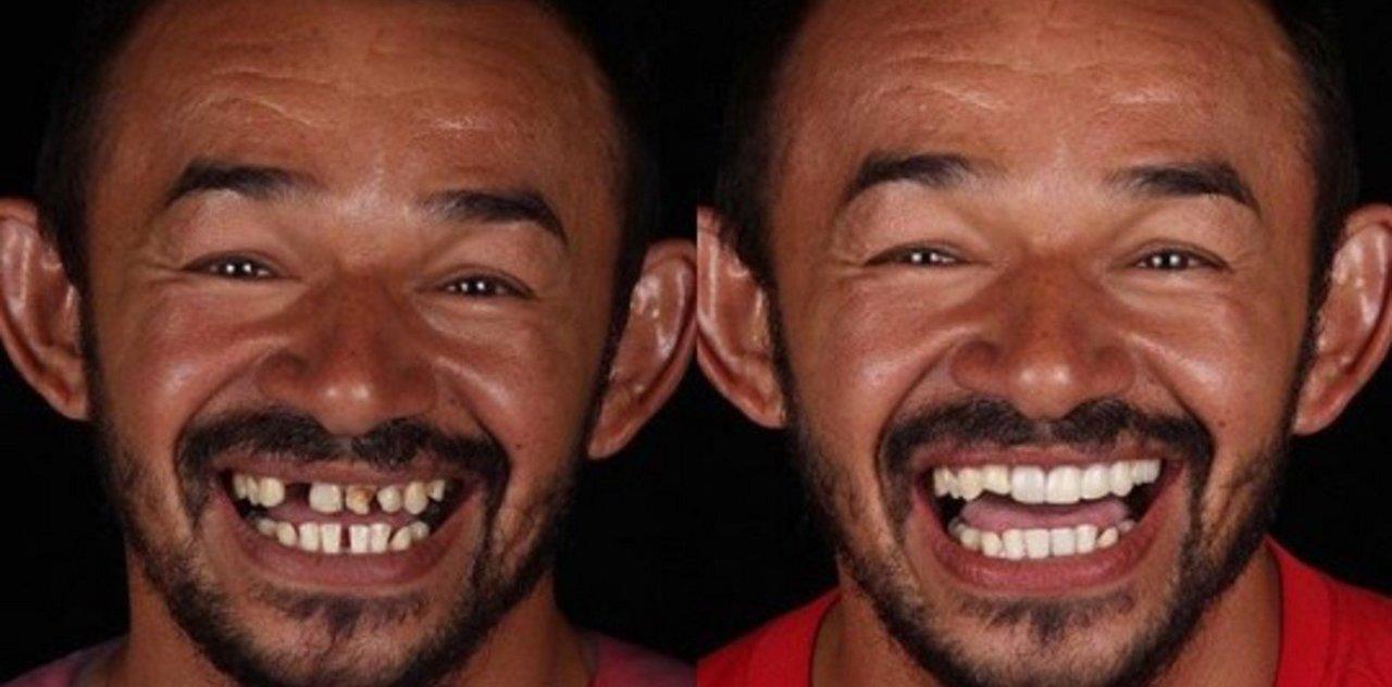 Uno de los tantos pacientes que cambiaron su vida y pueden sonreír (Instagram)