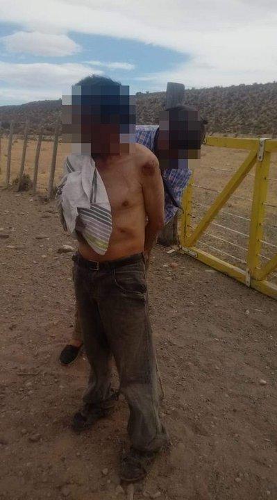 Encapuchados lo golpearon y le robaron: llegó con las manos atadas a un campo para pedir ayuda.