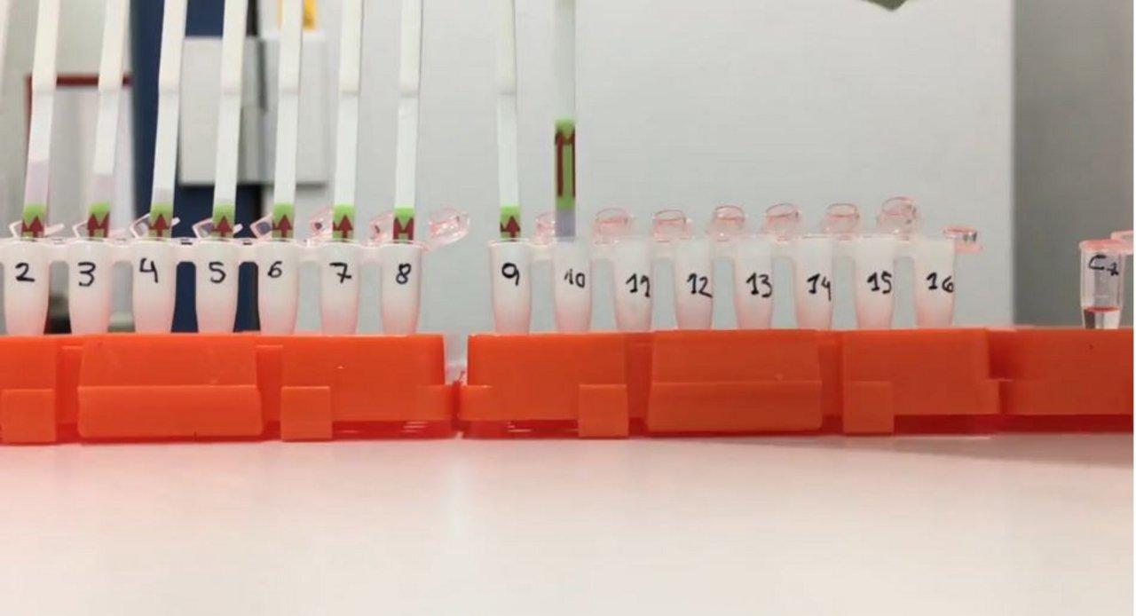 Científicos del Conicet crean kit para diagnosticar coronavirus en una hora