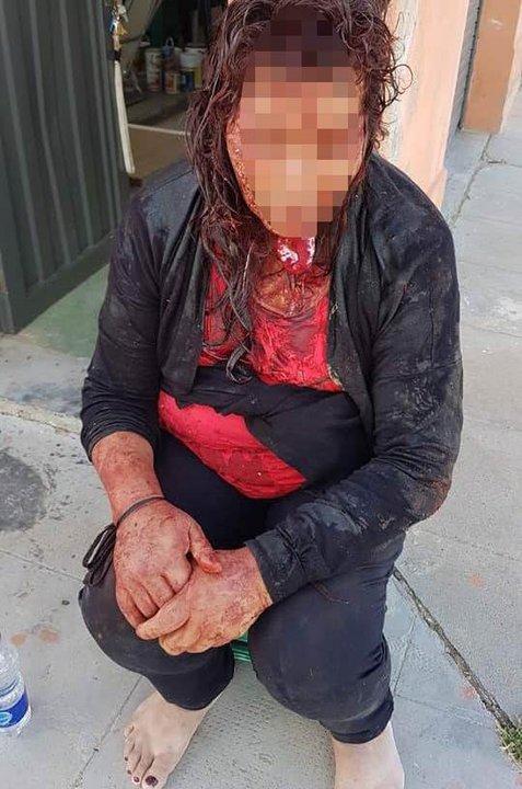 Así llegó la mujer a pedir ayuda, luego de ser atacada.